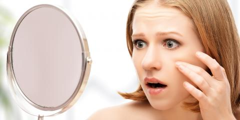 3 Types of Acne Treatments - Moore County